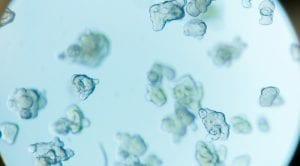 Proefdiervrij, organoids, Living Biobank, project, crowdfunding, organoid